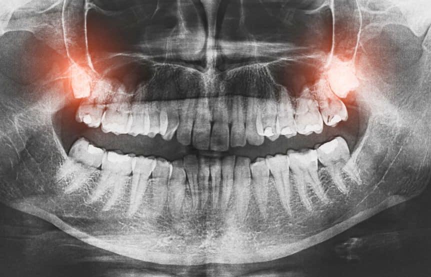 Chirurgiczne usunięcie zęba mądrości Warszawa Bemowo